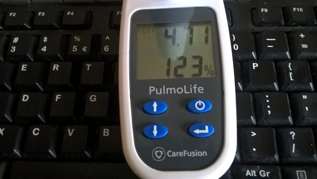 Spirometr z wynikiem pojemności płuc 4,71 litra i 123 procent